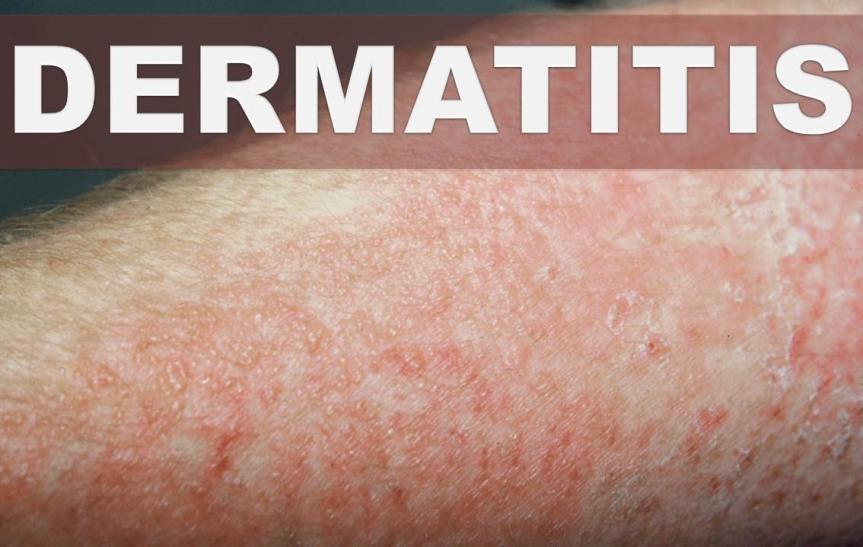 Eczema – Dermatitis