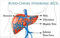 Venas abdominales dilatadas por síndrome de Budd-Chiari y obstrucción de venacava