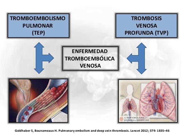 Preguntas sobre tromboembolismovenoso