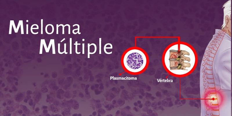 Mieloma multiple: Resumen, sin abordar eltratamiento
