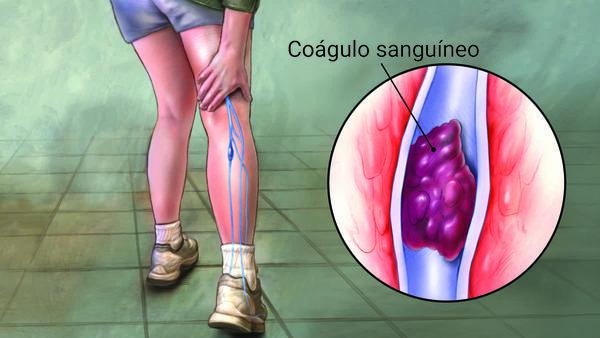 Diagnostico de trombosis venosaprofunda