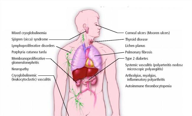 Manifestaciones extrahepáticas de la hepatitis Bcrónica