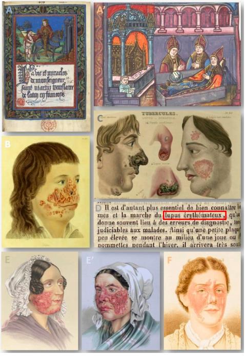 La historia del lupus a lo largo de lossiglos.