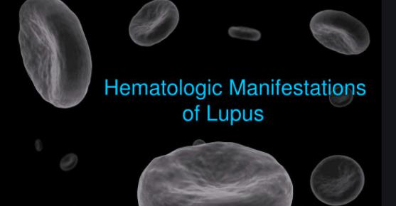 Manifestaciones hematológicas del lupus eritematoso sistémico (Uptodate2020)